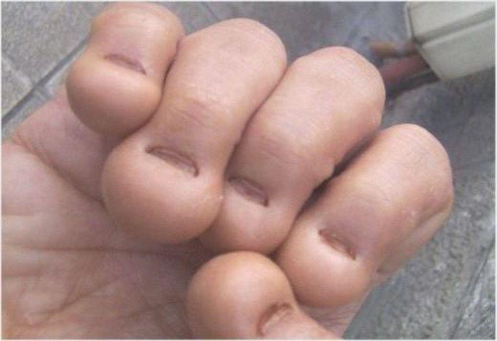Warum erscheint der Zapfen neben dem Finger